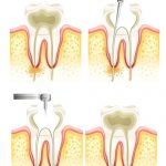 root canal treatment Cheltenham